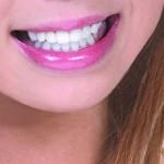 さわやかな白い歯