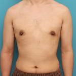 女性化乳房除去