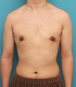 ba_gynecomastia010_a01