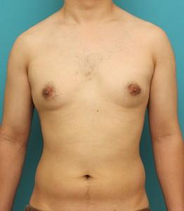 ba_gynecomastia010_b01