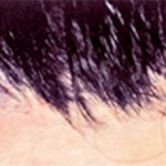 薄毛・抜け毛は治療可能!〈医療植毛〉