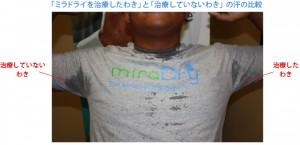 img_miradry_feature_01