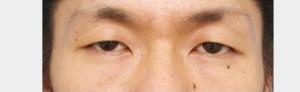 eye_photo02a