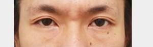eye_photo02b